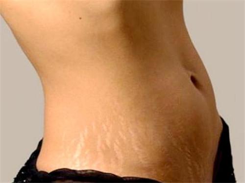 妊娠纹的形成原因是什么
