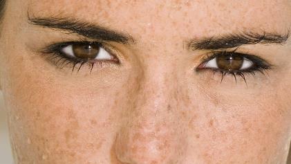 女性脸部的长黄褐斑怎样去除有效