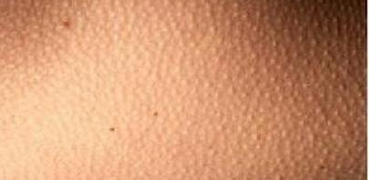 女性脸部皮肤暗黄如何改善