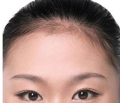 龙8国际网址龙8国际娱乐游戏除皱针可以去除抬头纹吗