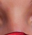 黑眼圈怎么快速去除