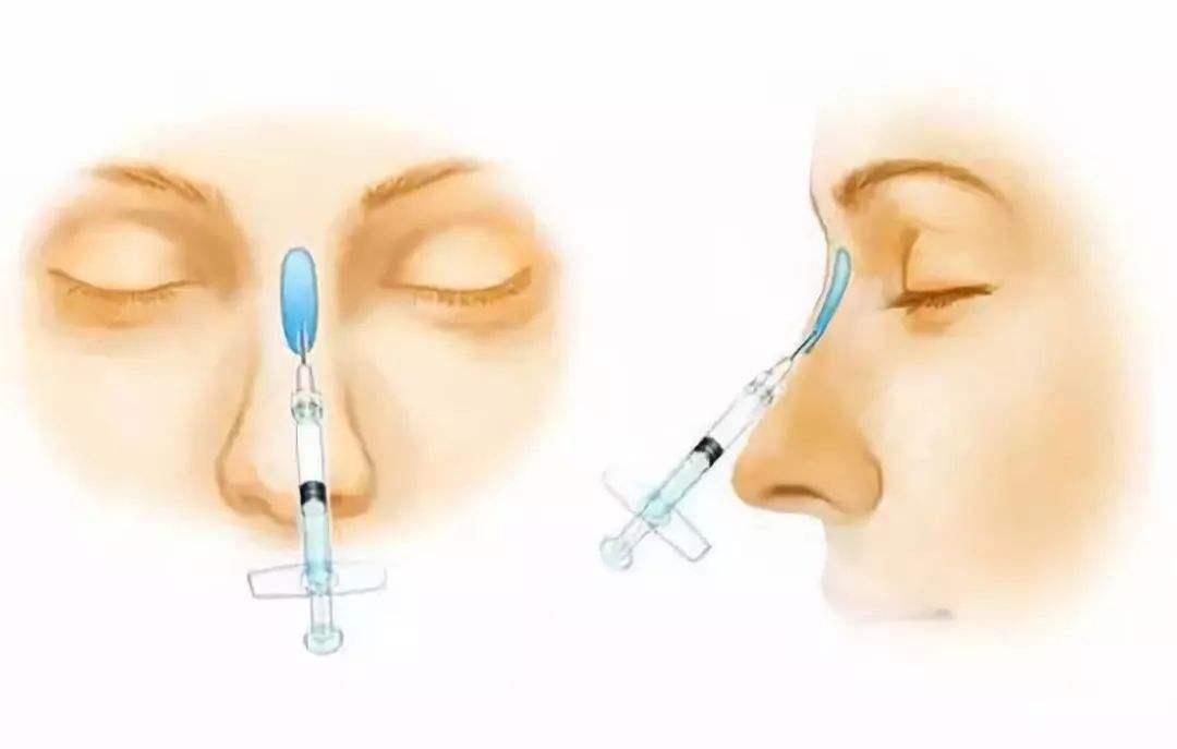 玻尿酸隆鼻的副作用有哪些