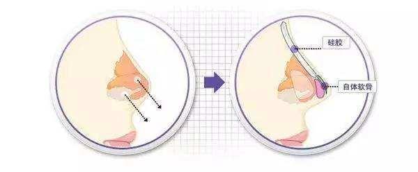 在整形医院做假体隆鼻能保持多久