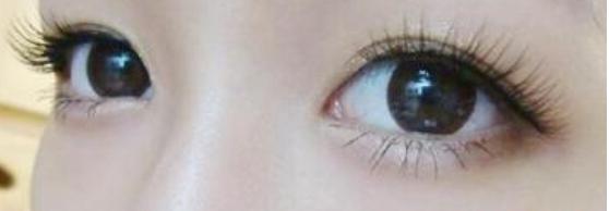 龙8国际真人整形医院全切双眼皮多久恢复
