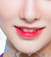瘦脸针能帮助瘦咬肌吗