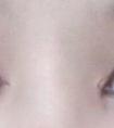 龙8国际网址整形医院做双眼皮后什么情况需要进行修复手术
