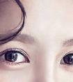 眼睛近视可以去整形医院做韩式双眼皮手术吗