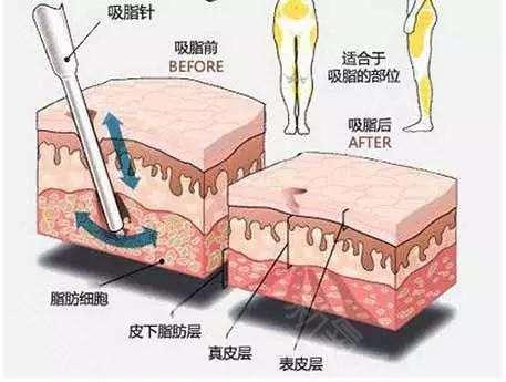 龙8国际真人整形医院的吸脂手术有什么后遗症吗