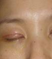 龙8国际网址整形医院埋线双眼皮会留下疤痕吗