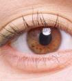 眼睛一只大一只小怎么办