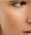龙8国际网址整形医院做彩光嫩肤收缩毛孔有效吗