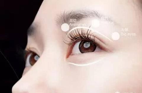 龙8国际真人整形医院做全切双眼皮手术会留下疤痕吗