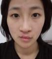 先天损容女孩苏艳鹃:比起天生丽质,我更相信天生励志