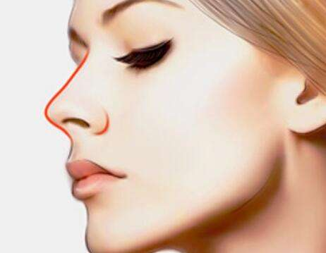 龙8国际真人整形医院垫鼻子选择什么材料比较好