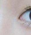 龙8国际网址整形医院做双眼皮修复手术需要多少钱