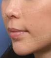 龙8国际网址整形医院做面部吸脂手术安全吗